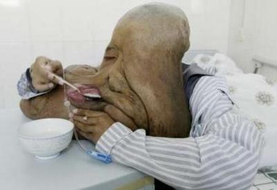 تصاویر زشت ترین مرد دنیا (نامناسب برای کودکان)